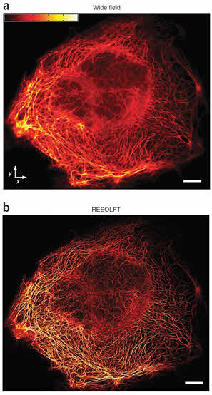 Confocal and Super Resolution